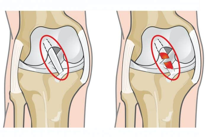 Ozljeda prednjeg kriznog ligamenta